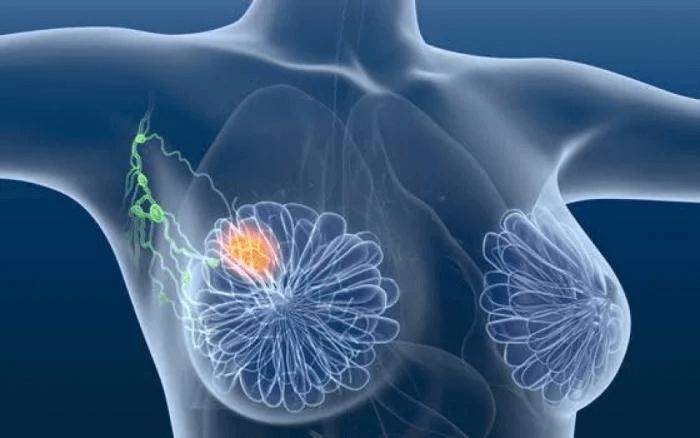 Impactos do câncer de mama para a infertilidade e alternativas para ser mãe